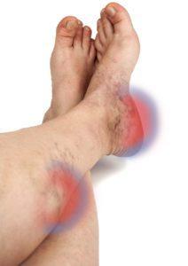 în venele varicoase se umflă picioarele și răniți)