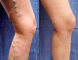 complicații cu vene varicoase